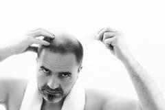 Uomo di mezza età responsabile dalla fine di alopecia di calvizile di perdita di capelli su fondo in bianco e nero e bianco Fotografie Stock