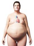 Uomo di peso eccessivo - cuore Fotografia Stock Libera da Diritti