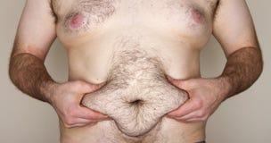 Uomo grasso che afferra la sua ciccia Fotografia Stock Libera da Diritti