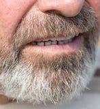 Uomo invaso della barba immagine stock libera da diritti