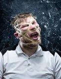 Uomo strano con gomma sul suo fronte Fotografia Stock