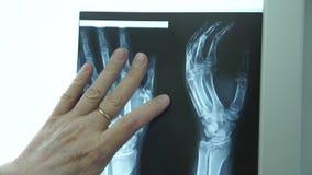Uomo in ufficio nei sembrare della clinica medica fatti all'immagine dei raggi x del braccio archivi video