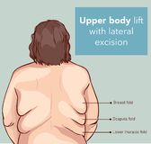 UPPER BODY LİFT WİTH LATERAL EXCİSİON Royalty Free Stock Photography