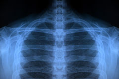 Upper Body  X-Ray. A mans Upper body shoulders and chest X-Ray Stock Image