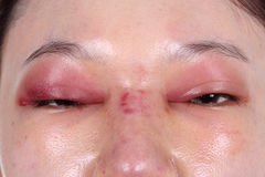 Upper eye lid and nose swell after nose job Stock Images
