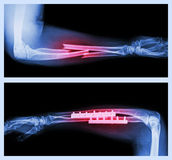 Upper image : Fracture ulnar and radius (Forearm bone) , Lower image : It was operated and internal fixed with plate and Stock Image