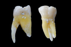 Upper molar Royalty Free Stock Photography
