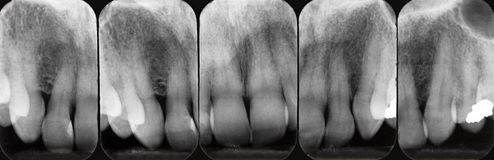 Upper Periodontal X-rays Stock Image