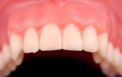 Upper Teeth Stock Image