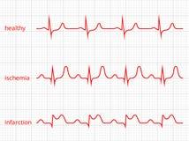 Uppsättning för diagram för hjärtakardiogramvektor sund hjärta Royaltyfri Bild