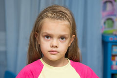 Upset five year old girl with tearful eyes Stock Images