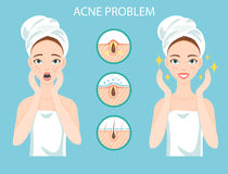 Upset teen with female facial skin problem needs to care about: infographic of acne disease and stages of it`s treatment. Royalty Free Stock Photo