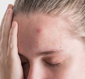 Upset teen girl with problematic skin posing on a white background stock image