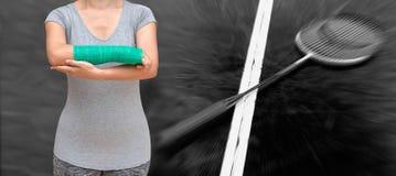 Uraz kobieta jest ubranym sportswear z zieleni obsadą na ręce i ręce Obraz Stock
