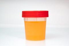 Urin-Probe in geschlossener transparenter Plastikdose lizenzfreie stockbilder