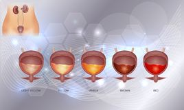 Urinary bladder and various urine colors. From light yellow till red color. Urinary bladder detailed anatomy and urine inside on an abstract glowig background Royalty Free Stock Photography