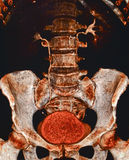Urinary system CT Royalty Free Stock Photography