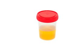 Urine. Sample in container isolated on white background Stock Photography