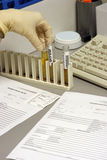 The  urine analysis. The hand in a glove holds a test tube with urine for the analysis in laboratory Stock Images