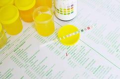 Urine analysis Stock Photo