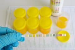 Urine analysis Royalty Free Stock Image
