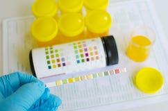 Urine analysis Royalty Free Stock Photos
