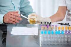 Urine cups Royalty Free Stock Image