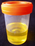 Urine sample. In specimen bottle isolated on black background Royalty Free Stock Photos