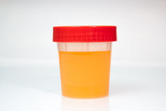 Urine Sample in closed transparent plastic can. Royalty Free Stock Images