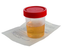 Urine Sample Royalty Free Stock Image