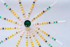 Urine sample and urine strips royalty free stock photography