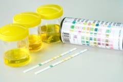 Urine strip test Stock Images