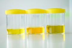 Urine strip test Stock Image