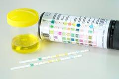 Urine strip test Stock Photography