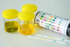 Urine strip test Royalty Free Stock Image