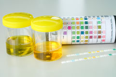 Urine strip test Royalty Free Stock Images