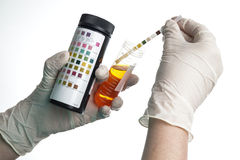 Urine test stripes examined by a nurse Royalty Free Stock Photos