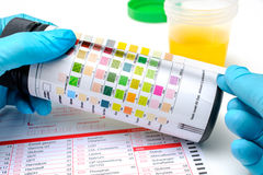 Urine test strips Royalty Free Stock Image