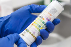 Urine test strips Stock Photography