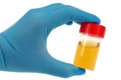 Urinefles voor medische analyse stock fotografie