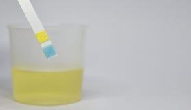 Urinprüfungsstreifen Stockfotos