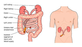 Urostomy. Illustration of a urostomy operation where a section of small bowel leads urine through the abdominal wall Royalty Free Stock Image
