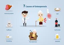 Ursache 7 der Osteoporose stock abbildung
