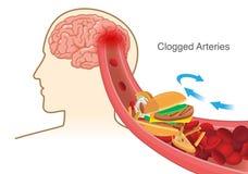 Ursache des Hamburger- und Pizza- und Pommes-Fritesblockroten blutkörperchens verstopfte in der Arterie vorher in Gehirn vektor abbildung