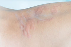 Urticaria on back. Close up image of a man's body suffering severe urticaria, nettle rash stock photography