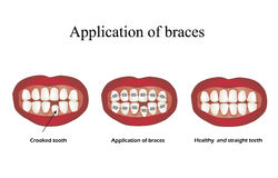 The use of braces. Crooked teeth. Orthodontics. Infographics. Vector illustration on  background Royalty Free Stock Image