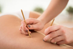 Using acupuncture to reduce cellulite Royalty Free Stock Photography