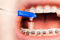 Using interdental brush for orthodontic  braces. Close-up picture of using an interdental brush for orthodontic braces Royalty Free Stock Photos