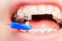 Using an interdental brush for orthodontic braces. Using interdental brush for difficult areas in between braces wire and teeth stock photos