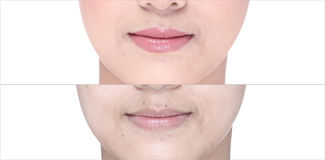 Before After, using Lipstick on moutth lip by gloss and sharpen Royalty Free Stock Images